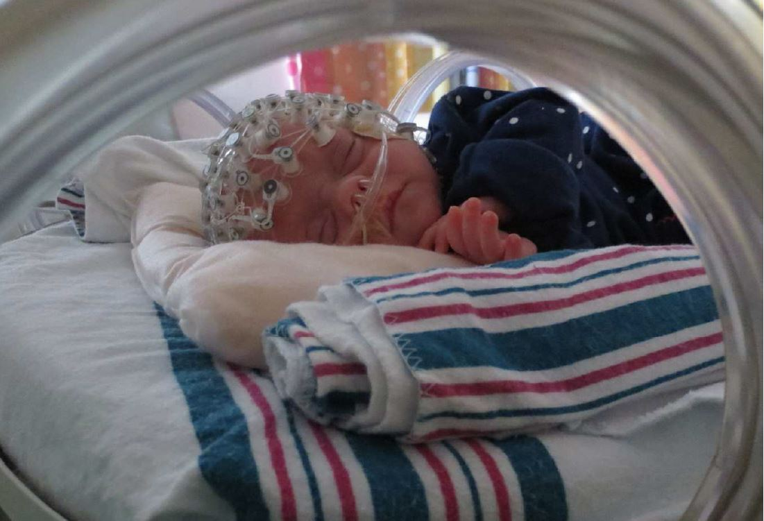 Caring touch helps premature brains mature
