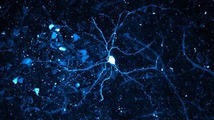 neuro cells