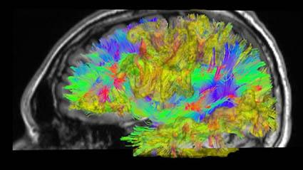 Schizophrenic brains take indirect paths