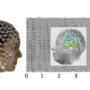 Using high-density EEG source imaging to detect subcortical electrophysiological activity