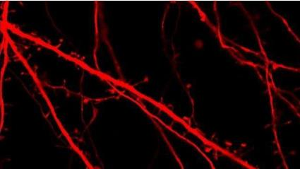 Fluorescent neurons